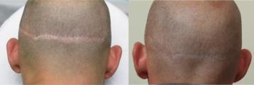 Litteken haarimplantatie