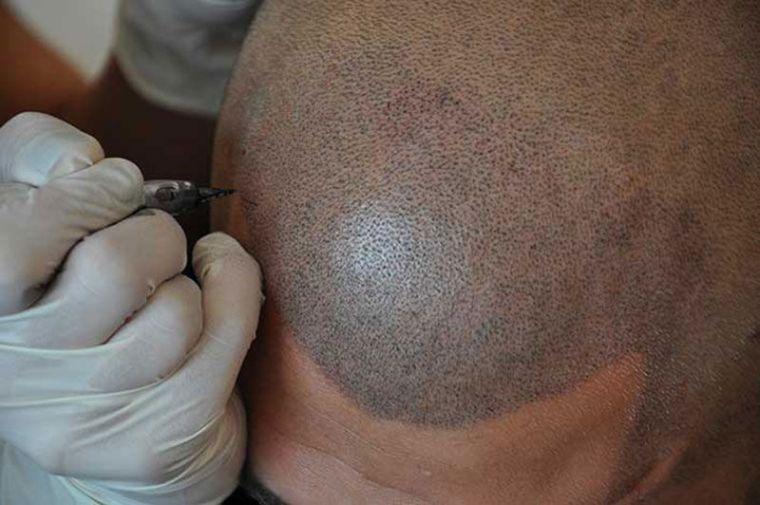 schedelpigmentatie voorbeeld